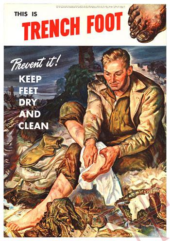 Bolest rovovskog stopala tijekom Drugog svjetskog rata nije bila toliko zastupljena radi poboljšanja uvjeta higijene, bolje opreme i samog načina ratovanja