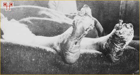Izuzetno težak slučaj rovovskog stopala kod kanadskog vojnika u Francuskoj 1917. (izvor: Library and Archives Canada)