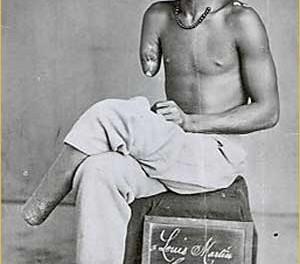 Louis Martin otpušten iz vojske nakon ranjavanja kod kratera