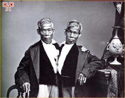 Chang i Eng u poznijim godinama