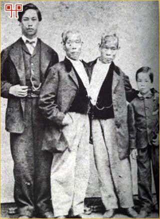 Chang i Eng sa sinovima Jamesom i Albertom snimljeni 1870. godin