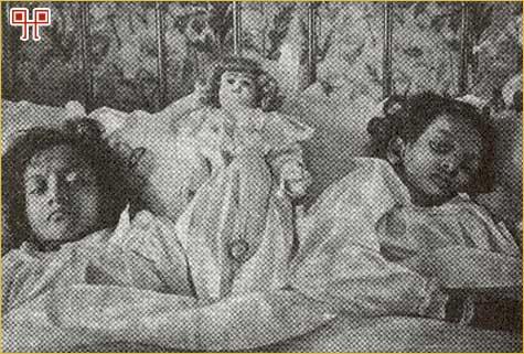 Radica i Doodica (na desnoj strani) poslije razdvajanja